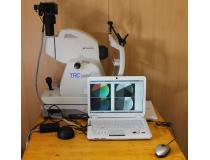 Topcon trc-50IX digital fundus camera